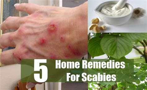 5 scabies home remedies treatments and cures