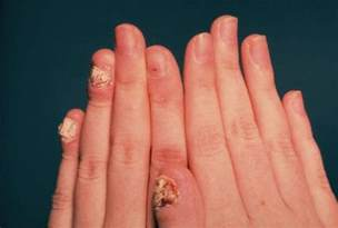 healthy and beauty tips how to cure nail fungus nail