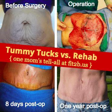 diastasis  tummy tucks  abdominal rehab