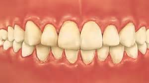 What does a dry socket tooth look like