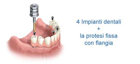 dentiera mobile costo impianti dentali prezzi costi impianti dentali prezzi