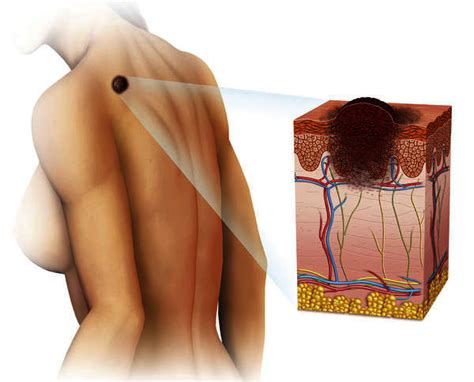 growth rarely happens inside your multi septated cyst things you didn t know