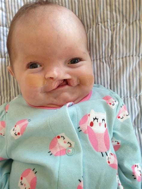 s new smile a baby with cleft lip and palate books the 25 best ideas about cleft lip on nursing
