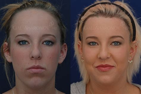 forehead surgery before and after forehead reduction surgery hairline lowering surgery