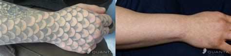 what does a removed tattoo look like removal laser q switched nd yag laser