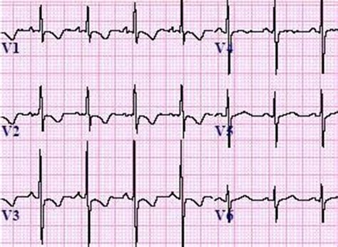 strain pattern ecg definition right ventricular hypertrophy rvh ecg review criteria