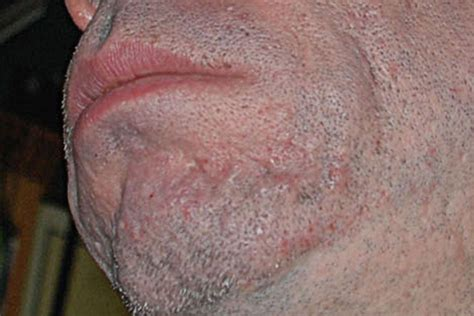best scar medicine 4 types of acne scars and their treatments