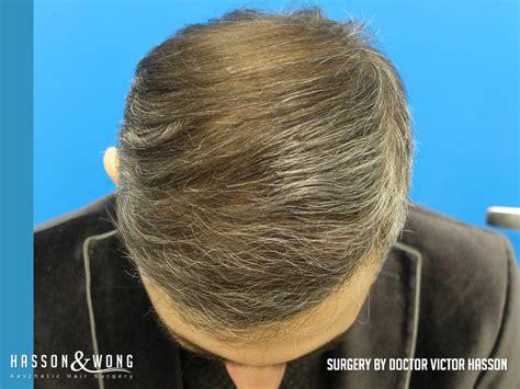 fut hong kong hair transplant hair transplant before after 4042 fut grafts incredible