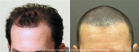 scalp micropigmentation for blonde hair scalp micropigmentation of fue combo review for norwood 5
