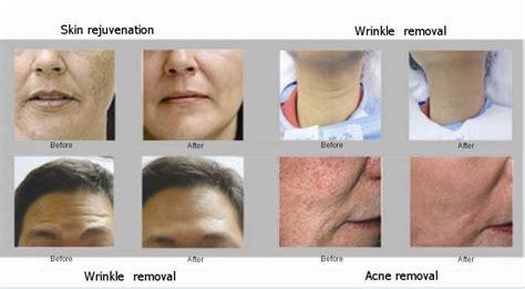 red light scar treatment nu you skin care revitalizing peels