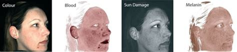 Beau Visage See Your Skins Sun Damage by Skin Conditions And Ageing Consultation Beau Visage