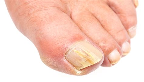 Finger Nail by Fingernail Infection Causes Symptoms Pictures