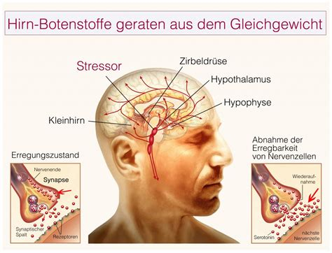 hws syndrom übungen für zuhause halswirbels 228 ule schwindel