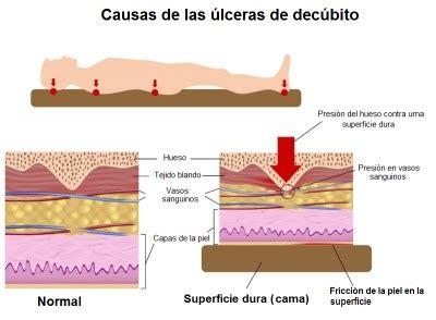 dolor espalda colchon colchon recomendado para dolor de espalda caracteristicas