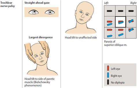 vestibulocochlear reflex a guide to the cranial nerves stepwards
