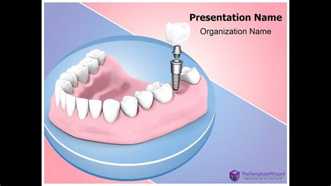 Dental Implant Powerpoint Presentation Template Thetemplatewizard Youtube Free Animated Dental Powerpoint Templates