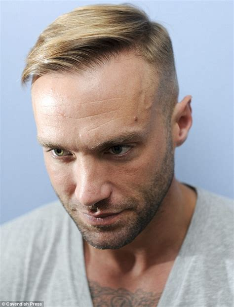 hair style temple bald spots no man wants to be bald calum best s 163 6 000 third hair