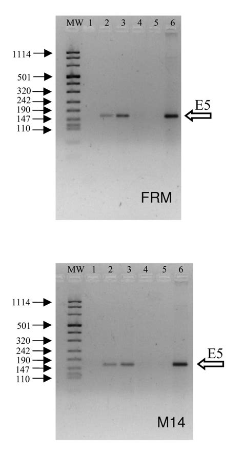 j protein res expression of human papilloma virus type 16 e5 protein in