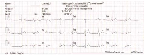 wolff parkinson white pattern ecg wolff parkinson white syndrome part 1 ecg medical training