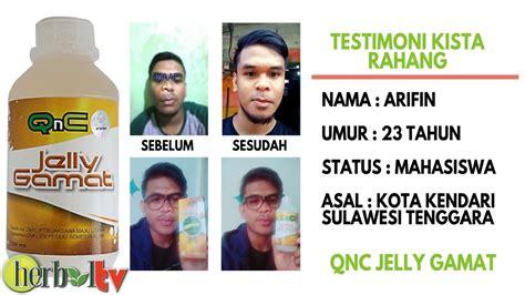 Qnc Jelly Gamat Herbal Tv testimoni qnc jelly gamat untuk mengobati kista rahang