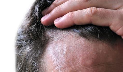seborrea cuero cabelludo dermatitis seborreica seborrea fotos im 225 genes 187 seborrea