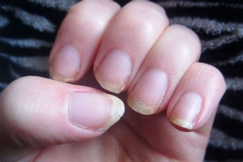sana quick for fungus nail fungus sana why do you get white spots on your