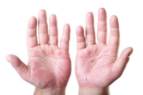 en la piel de 7 tipos de enfermedades de la piel que no conocias