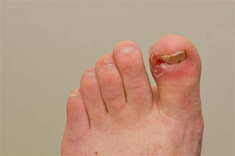 Toe Nail Care by Ingrown Nails Can Be Treated Naturally