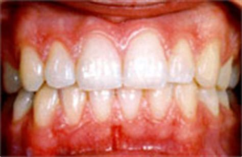 what color should gums be dr ali zayni s dental center gingivitis