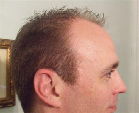 sting hairstyles decision made bradaptation com