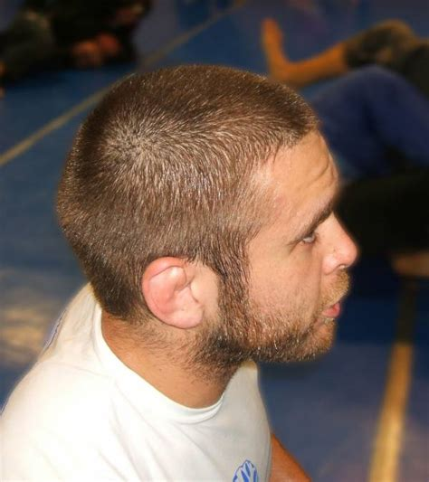 cauliflower ear how to prevent and treat cauliflower ear and if it means you might always be single