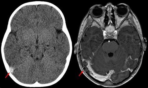 angio rmn vasi intracranici brain cerebral thrombosis hubstroke