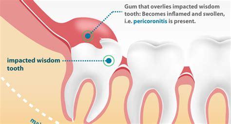 wisdom teeth pain  common symptoms  arise