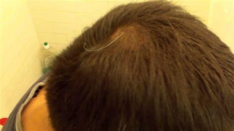 does hair burst work hair burst does it really work hairfinity nutrition