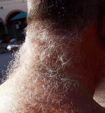 neck hair neck hair getting edgy s blog