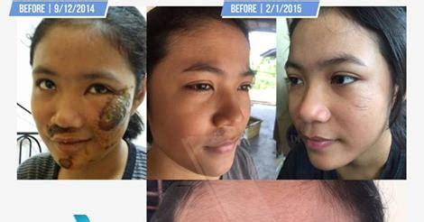 stok terbatas azanis scar serum penghilang bekas luka jerawat jual azanis scar serum ladieshop