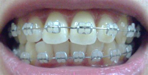 clear braces with color clear braces colors www imgkid the image kid has it