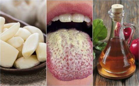 candida alimentazione e rimedi naturali 6 rimedi naturali per tenere sotto controllo la candida