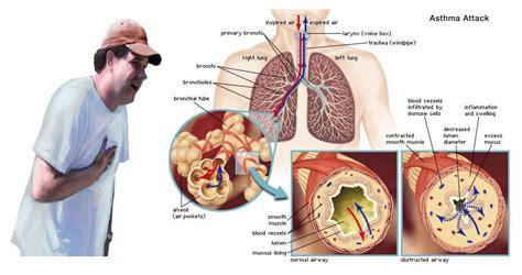 asthma attack asthma attack