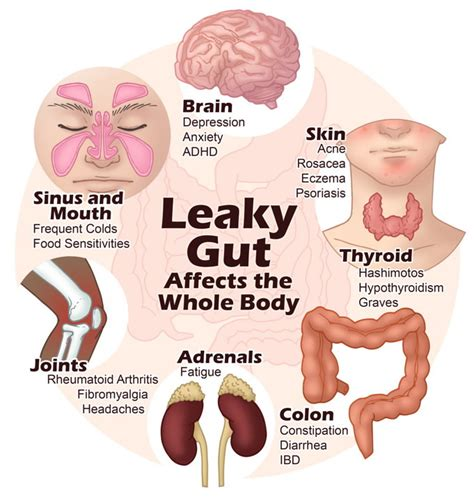Of Stool Symptoms by Leaky Gut And Irritable Bowel