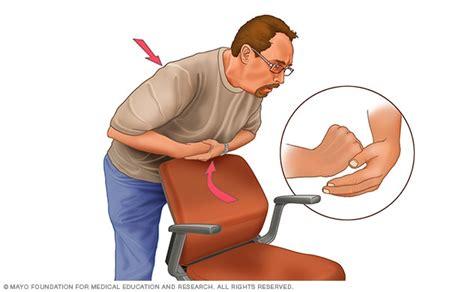 heimlich maneuver choking aid mayo clinic