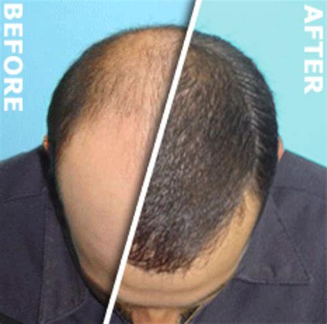 light therapy for hair loss lllt hair loss pictures photos