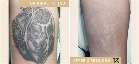 1 laser tattoo removal sydney 1 laser removal sydney removal institute