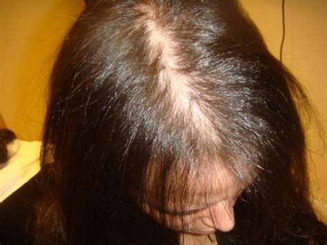treating hair fall women over 50 alopecia androgenetica bij vrouwen female pattern baldness
