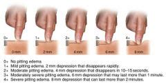 normal skin color temperature and condition should be 213 lymphatic system and integumentary system conditions