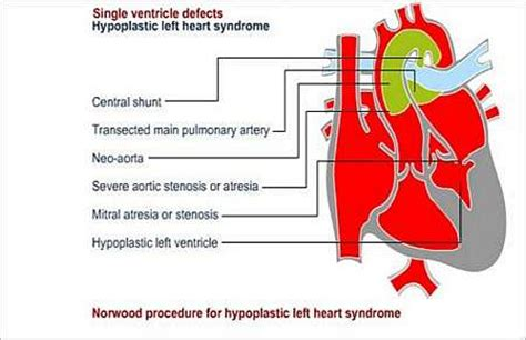 swinging heart syndrome department of cardiothoracic surgery university of the