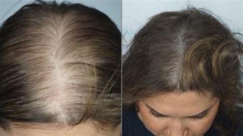hair tattoo numbers hair tattoos help woman regain confidence after balding