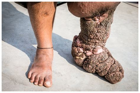Lymphatic Filariasis — Marcus Perkins Photography