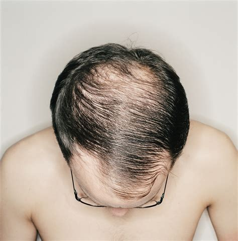 rapid hair loss male pattern baldness hairloss cures could study that renews follicles help