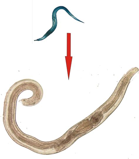 Obat Cacing Kremi Di Apotik ramuan jamu herbal obat cacing kremi oxyuriasis medusa